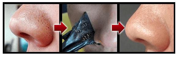 эффект от применения черной маски